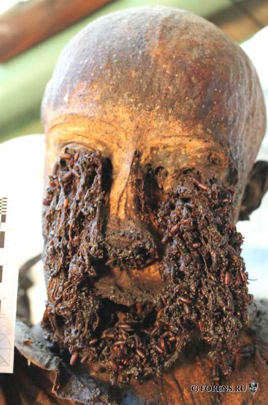 Changes of the eyeballs of a corpse during mummification