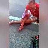 Biker with a broken leg