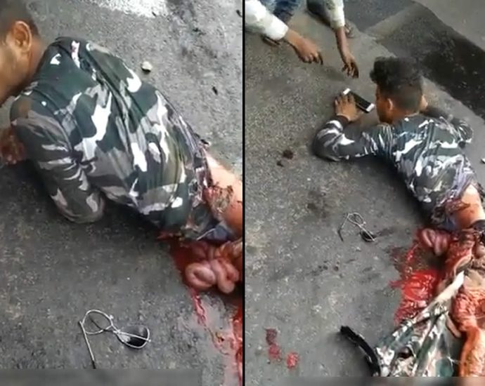 Motorcyclist with fallen out guts