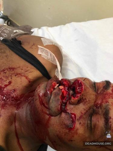 Facial injury from machetes