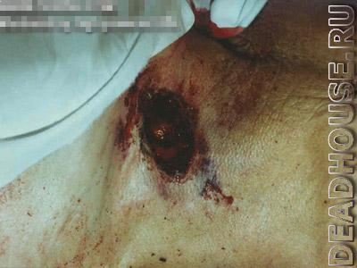 Corpse. Through wound from a gun