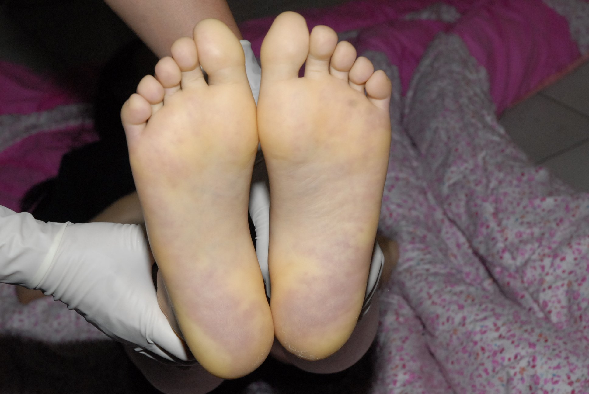 Cadaveric spots on the foot