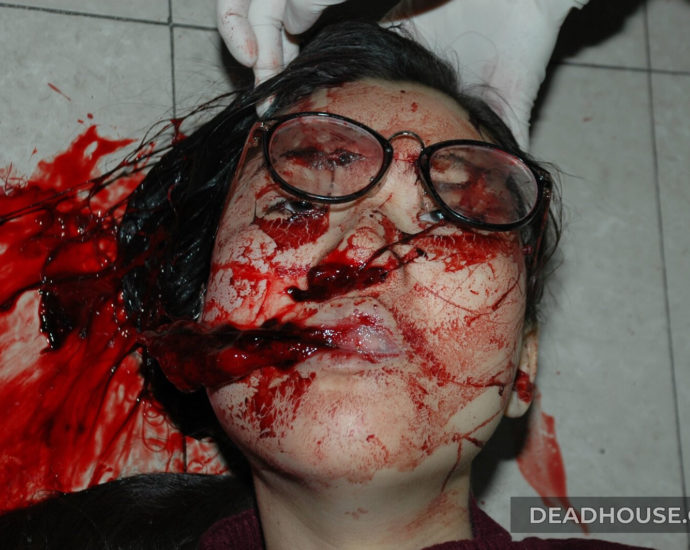 Face covered in blood