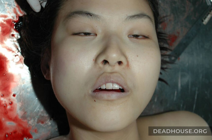 Beautiful face of a dead girl