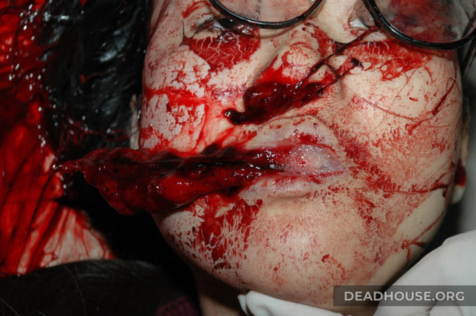 Girl's bloodied face