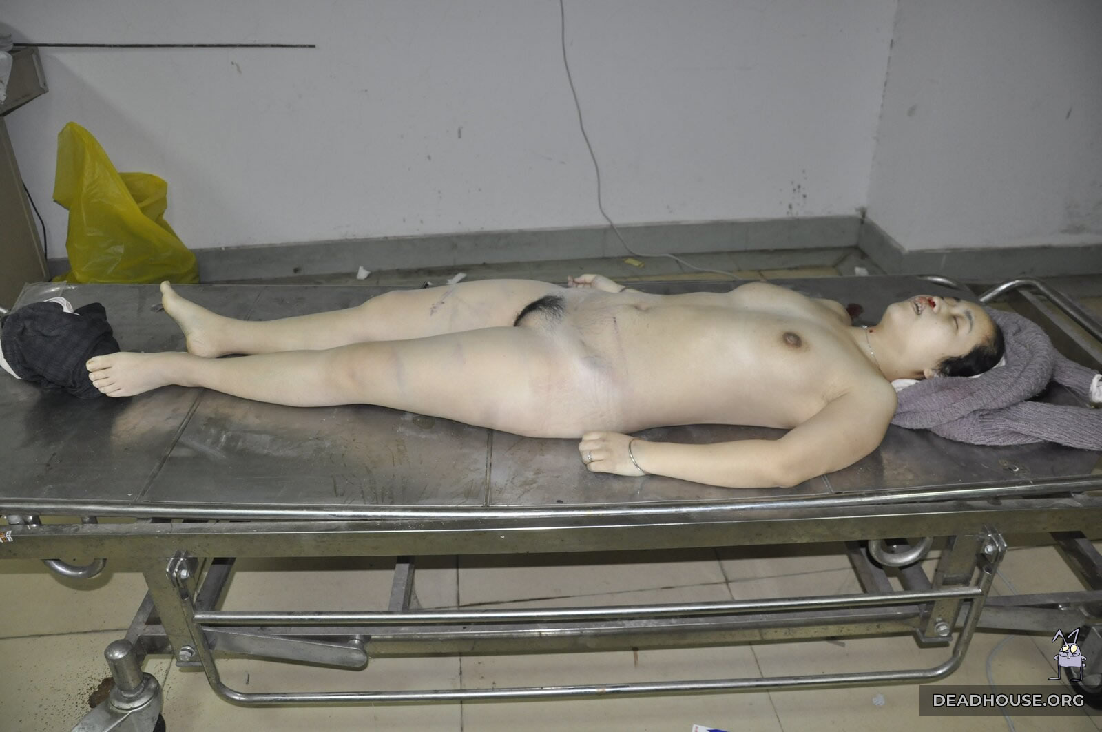 Corpse of a girl in the morgue