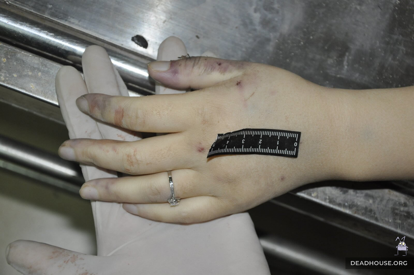 Ring on the hand and characteristic injuries of the hands