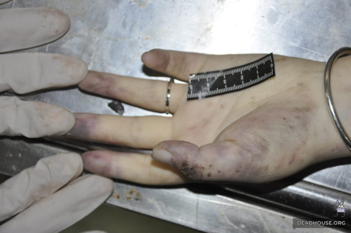 Corpse's hands