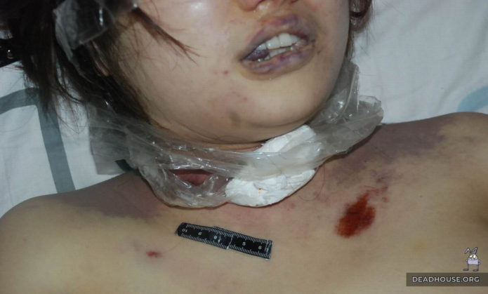 Remains of scotch tape on the neck of a corpse