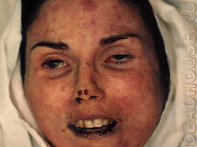 Lisa McPherson in the morgue