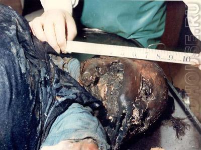 Rotting corpse