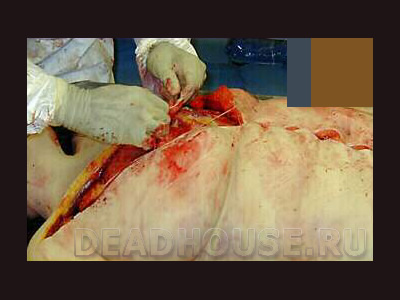 The corpse of a woman. Autopsy in the morgue