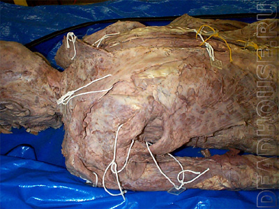 Mummified corpse of a man in a morgue