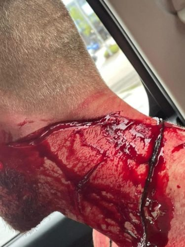 Consequences of a fight with a machete