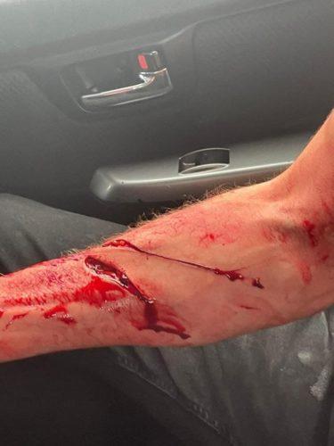 Machete wound on hand