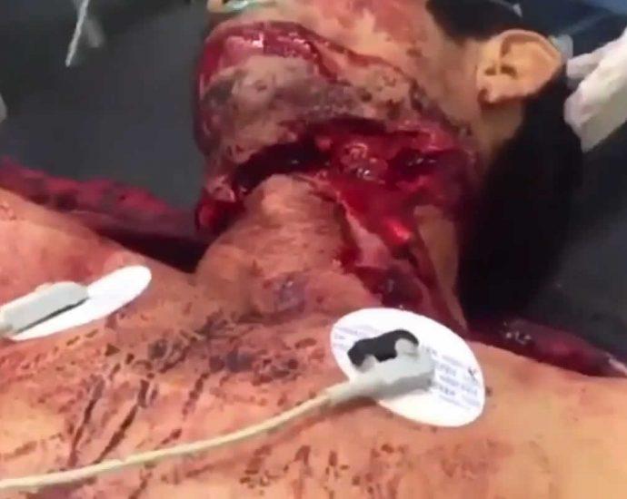 Result of machete impact