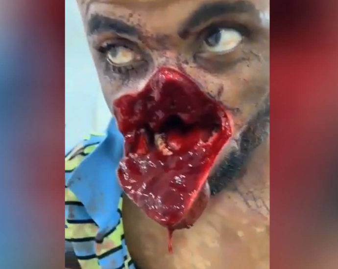 Trauma from a machete hit video