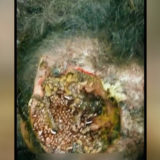 Worms crawling in the brain
