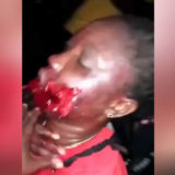 Woman shot herself in the face