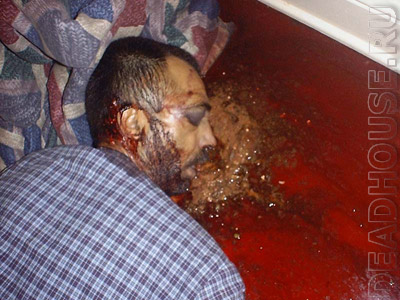 Corpse. Suicide. Headshot