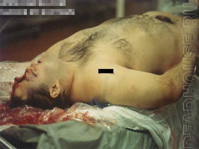 The corpse of a suicide. Head shot