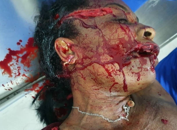 Woman's face with machete injuries