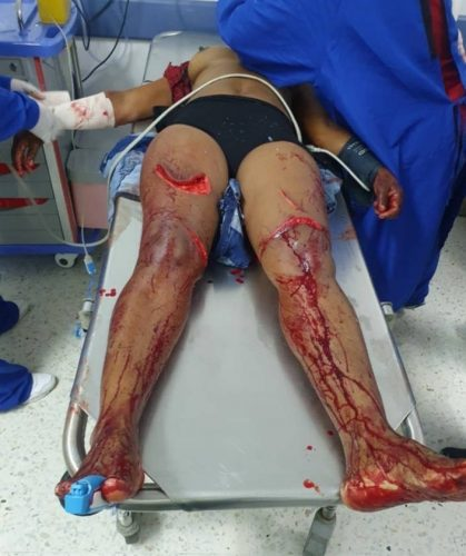 Corpse of a woman with machete injuries