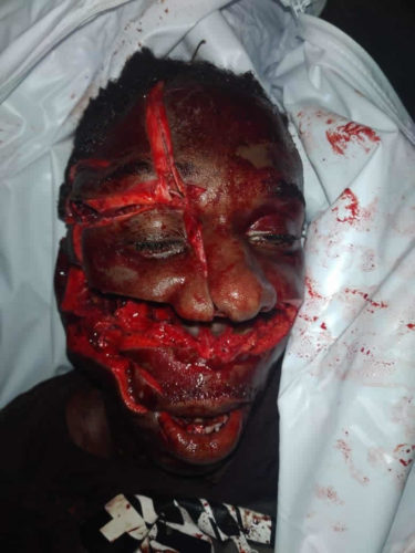 Face injuries from machetes