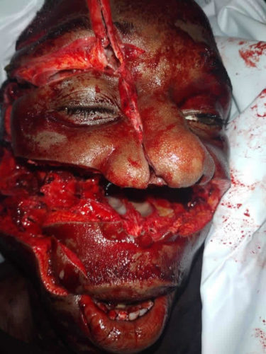 Face after being hit by a machete