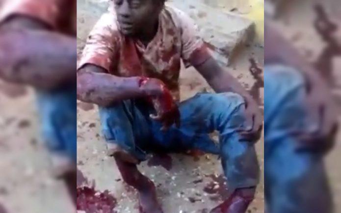 Насильнику сломали ноги