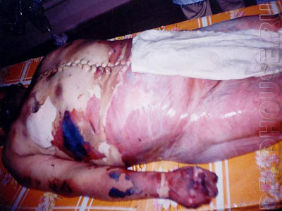 This man died from torture in a prison in Uzbekistan